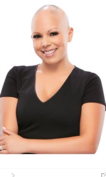 Alopecia Areata Patient