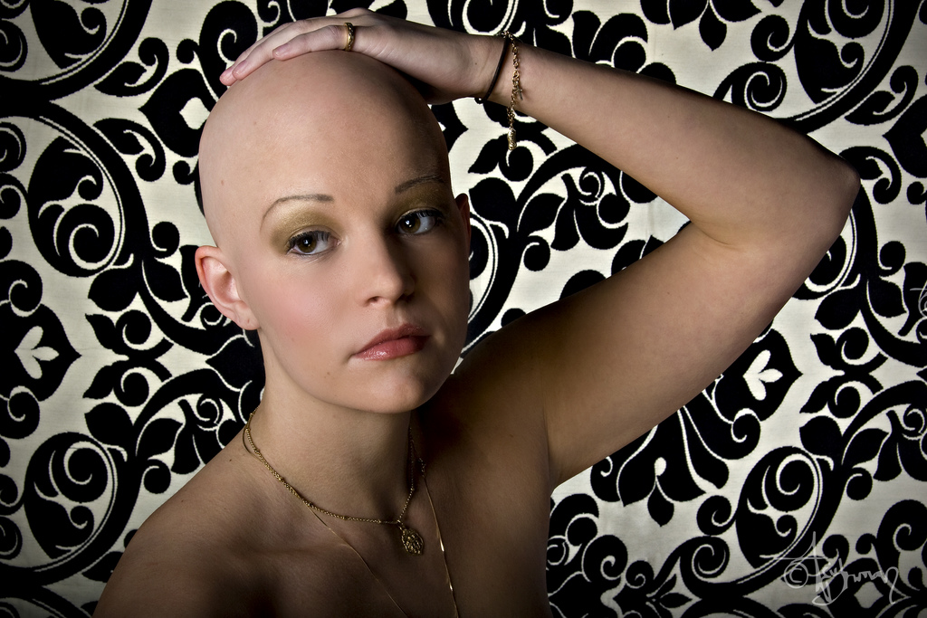 Bald woman with alopecia universalis