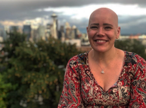 Christine Wigandt Alopecia Areata Diagnosis
