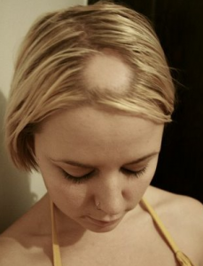 Patchy Alopecia
