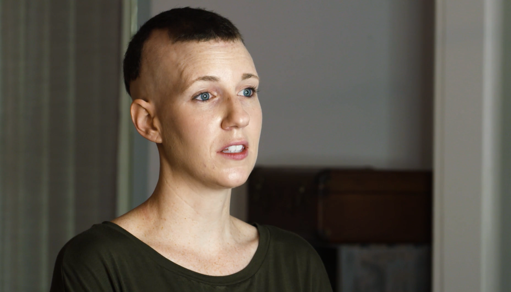 Shannon, living with Alopecia Areata