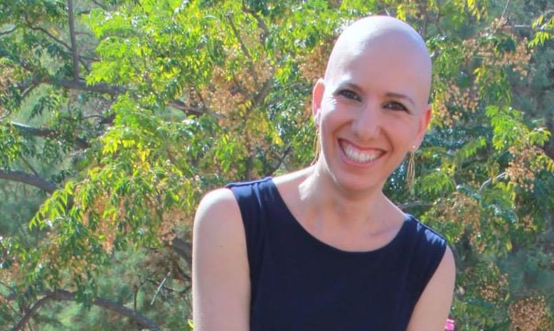 Keren Barak Alopecia Universalis